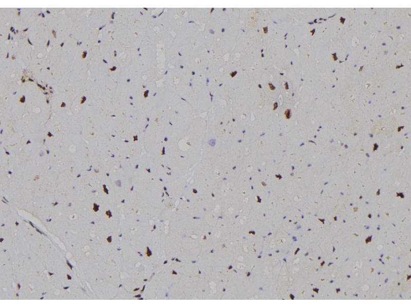 Image no. 1 for anti-Cyclin-Dependent Kinase 20 (CDK20) (pThr161) antibody (ABIN6269483)