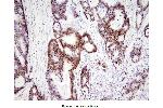 Immunohistochemistry (IHC) image for anti-HMGB1 antibody (High-Mobility Group Box 1) (AA 1-215) (ABIN356226)