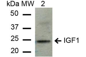 Image no. 2 for anti-Insulin-Like Growth Factor 1 (IGF1) antibody (ABIN5066641)