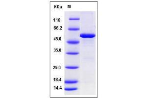 Image no. 1 for Spastic Paraplegia 21 (SPG21) (AA 1-308) protein (GST tag,His tag) (ABIN2008303)