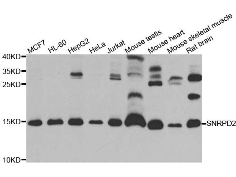 Image no. 1 for anti-Small Nuclear Ribonucleoprotein D2 Polypeptide 16.5kDa (SNRPD2) antibody (ABIN6567906)