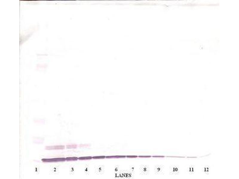 image for anti-Granulocyte Chemotactic Protein 2 (GCP2) antibody (ABIN464968)