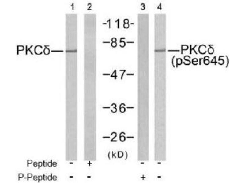 Western Blotting (WB) image for anti-Protein Kinase C, delta (PKCd) antibody (ABIN4345828)