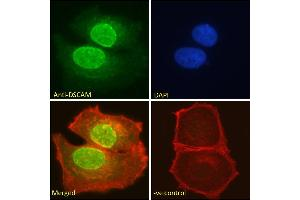 Image no. 1 for anti-Down Syndrome Cell Adhesion Molecule (DSCAM) (Internal Region) antibody (ABIN185687)