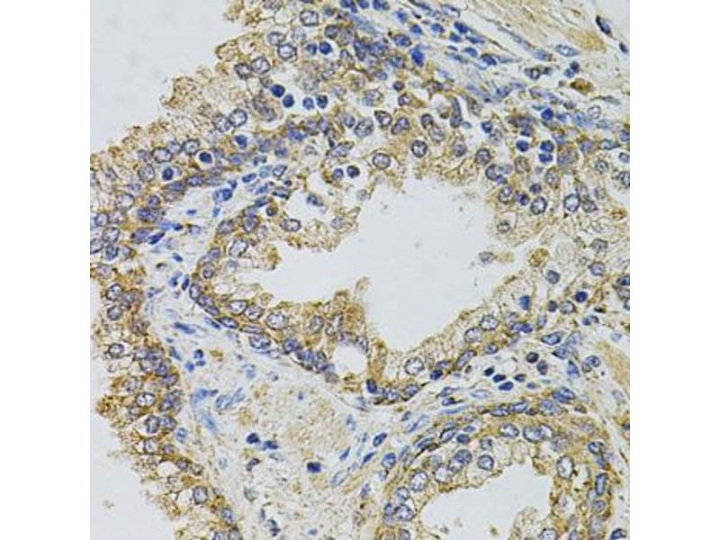 Image no. 2 for anti-GM13125 Gene Product From Transcript GM13125-RA (DSEC\GM13125) antibody (ABIN6567596)