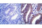 Immunohistochemistry (Paraffin-embedded Sections) (IHC (p)) image for anti-Progesterone Receptor (PGR) (B form) antibody (ABIN266931)