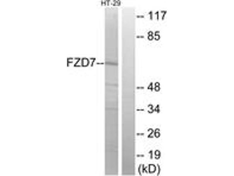 Western Blotting (WB) image for anti-FZD7 antibody (Frizzled Family Receptor 7) (ABIN1535614)