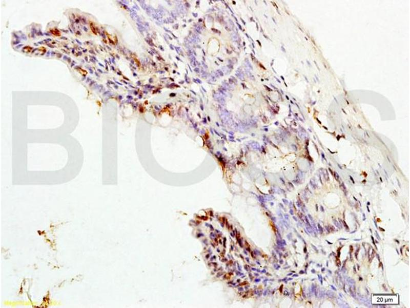 Immunohistochemistry (IHC) image for anti-MAPK3 antibody (Mitogen-Activated Protein Kinase 3) (AA 120-155) (ABIN736476)