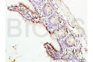 Immunohistochemistry (IHC) image for anti-Mitogen-Activated Protein Kinase 3 (MAPK3) (AA 120-155) antibody (ABIN736476)