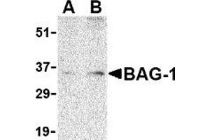 Image no. 1 for anti-BCL2-Associated Athanogene (BAG1) (N-Term) antibody (ABIN1031257)