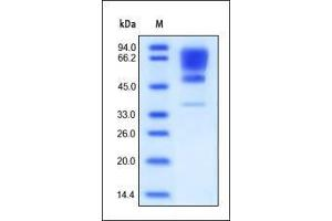 Image no. 1 for Cell Adhesion Molecule 1 (CADM1) (AA 45-374) protein (His tag) (ABIN2180672)