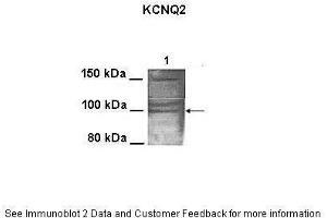 Image no. 2 for anti-Potassium Voltage-Gated Channel, KQT-Like Subfamily, Member 2 (KCNQ2) (N-Term) antibody (ABIN2776303)