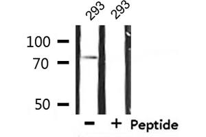 Western Blotting (WB) image for anti-Interleukin 2 Receptor, beta (IL2RB) antibody (ABIN6262526)