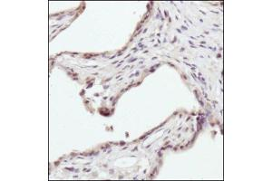 Immunohistochemistry (Paraffin-embedded Sections) (IHC (p)) image for anti-Erythropoietin Receptor (EPOR) (AA 300-400), (Internal Region) antibody (ABIN446737)