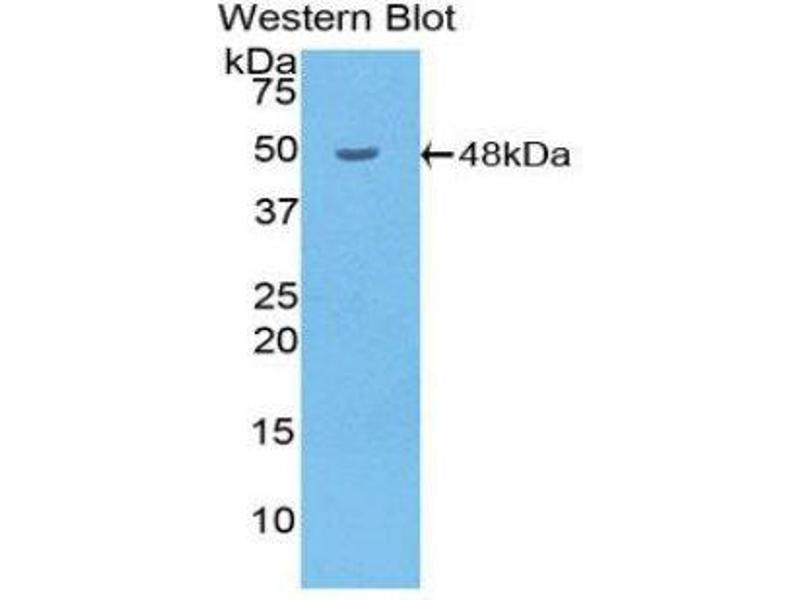 Western Blotting (WB) image for anti-Hyaluronidase-1 (HYAL1) (AA 52-462) antibody (ABIN1859237)