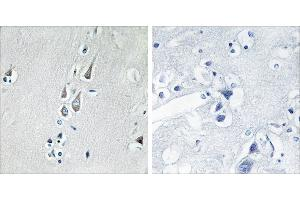 Immunohistochemistry (IHC) image for anti-CAMK2D antibody (Calcium/calmodulin-Dependent Protein Kinase II delta) (Thr286) (ABIN2163202)