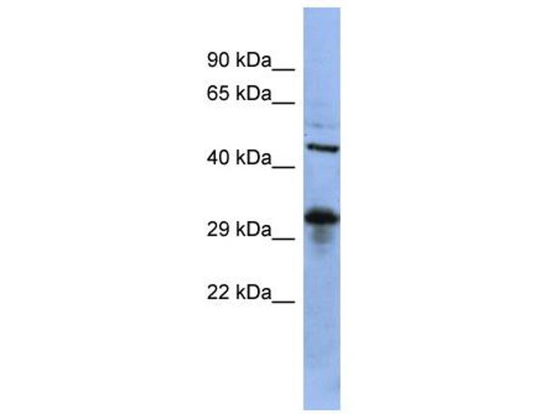 Western Blotting (WB) image for anti-SRY (Sex Determining Region Y)-Box 2 (SOX2) (Middle Region) antibody (ABIN2780468)