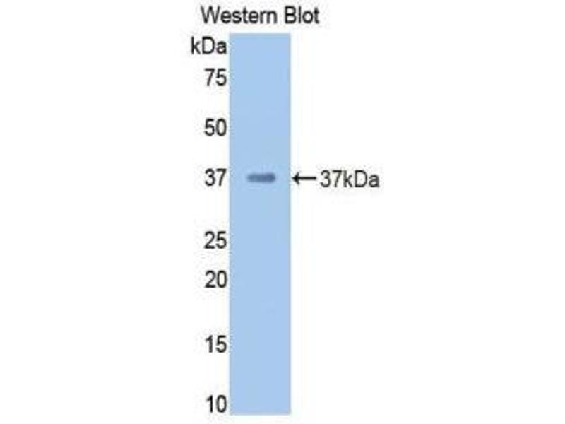 Western Blotting (WB) image for anti-Coagulation Factor II (thrombin) (F2) (AA 325-618) antibody (ABIN1858754)