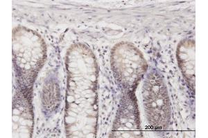 Image no. 3 for anti-Mediator Complex Subunit 27 (MED27) (AA 1-70) antibody (ABIN564069)