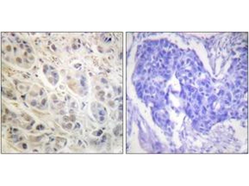 Immunohistochemistry (IHC) image for anti-Ribosomal Protein S6 Kinase, 90kDa, Polypeptide 3 (RPS6KA3) (AA 539-588) antibody (ABIN1532382)