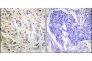 Immunohistochemistry (IHC) image for anti-Ribosomal Protein S6 Kinase, 90kDa, Polypeptide 3 (RPS6KA3) (AA 539-588) antibody (ABIN1532382)