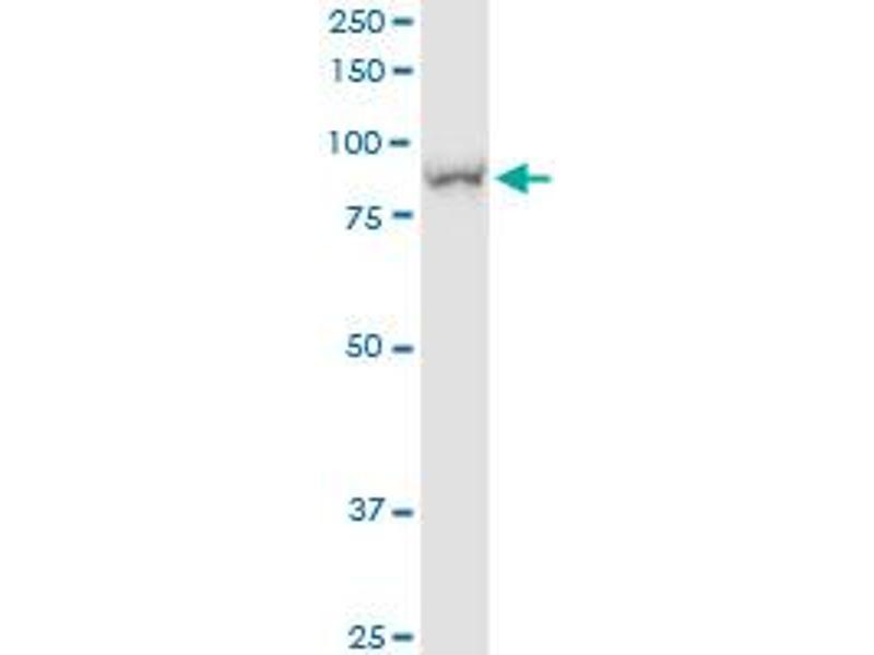 Immunoprecipitation (IP) image for anti-Glucose-6-Phosphate Dehydrogenase (G6PD) (AA 1-791), (full length) antibody (ABIN948822)