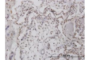 Image no. 4 for anti-Replication Protein A4, 30kDa (RPA4) (AA 1-261) antibody (ABIN526172)