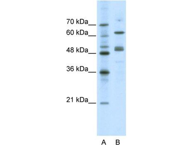 Western Blotting (WB) image for anti-GATA Binding Protein 4 (GATA4) (N-Term) antibody (ABIN2780394)