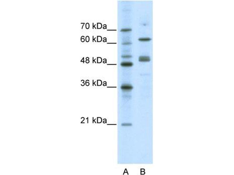 Western Blotting (WB) image for anti-GATA Binding Protein 4 (GATA4) (N-Term) antibody (ABIN2780394)