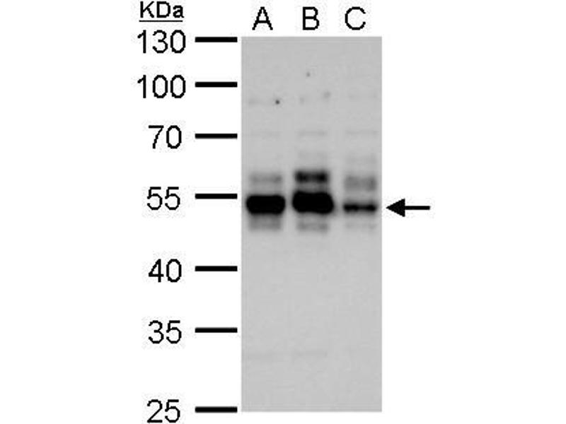 Western Blotting (WB) image for anti-Microtubule-Associated Protein tau (MAPT) (Center) antibody (ABIN2854882)