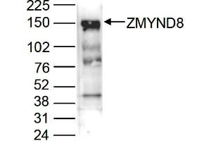 Image no. 1 for anti-Zinc Finger, MYND-Type Containing 8 (ZMYND8) (C-Term) antibody (ABIN6655406)