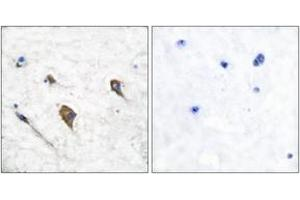 Image no. 1 for anti-Colony Stimulating Factor 2 Receptor, beta 2, Low-Affinity (Granulocyte-Macrophage) (CSF2RB2) (AA 559-608), (pTyr593) antibody (ABIN1531288)