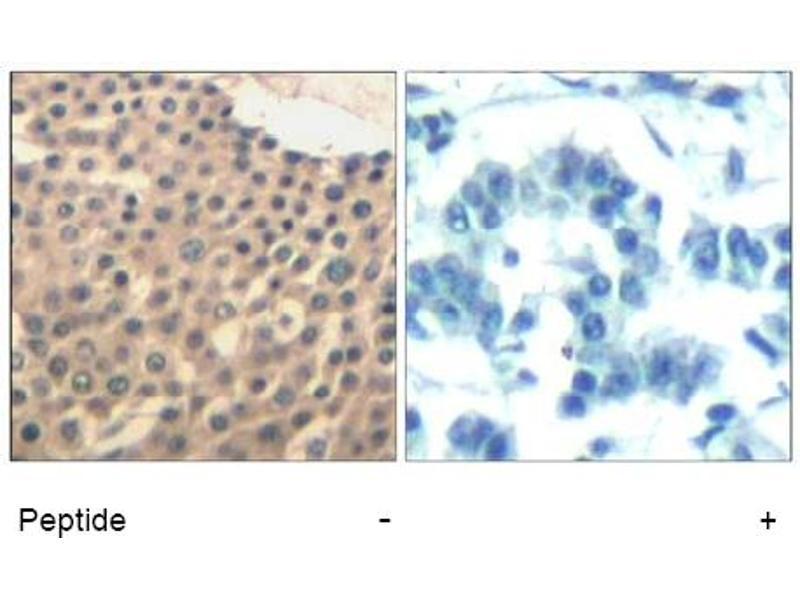 Image no. 1 for anti-HDAC4/HDAC5/HDAC9 (Ser220), (Ser246), (Ser259) antibody (ABIN319389)