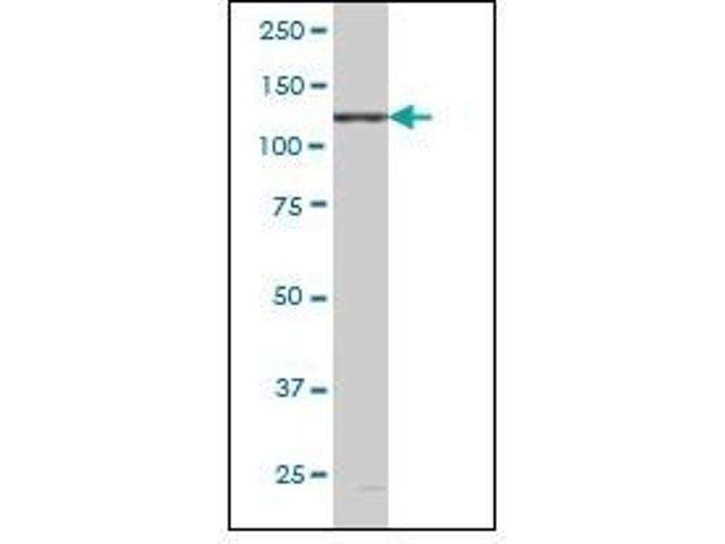 Western Blotting (WB) image for anti-EPH Receptor B6 Antikörper (EPHB6) (ABIN781859)