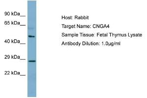 Image no. 1 for anti-Cyclic Nucleotide Gated Channel alpha 4 (CNGA4) (N-Term) antibody (ABIN2782034)