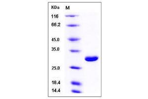 Image no. 1 for Ubiquitin Carboxyl-terminal Esterase L1 (Ubiquitin Thiolesterase) (UCHL1) (AA 2-223) (Active) protein (His tag) (ABIN2008165)