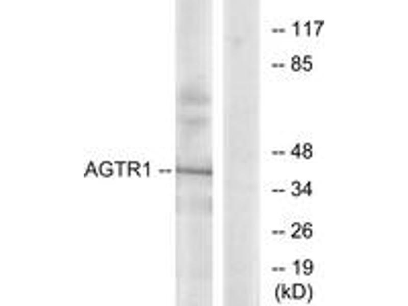 Western Blotting (WB) image for anti-Angiotensin II Type-1 Receptor antibody (Angiotensin II Receptor, Type 1) (ABIN1535649)