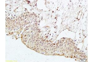 Immunohistochemistry (Paraffin-embedded Sections) (IHC (p)) image for anti-Par-3 Partitioning Defective 3 Homolog (C. Elegans) (PARD3) antibody (ABIN681718)