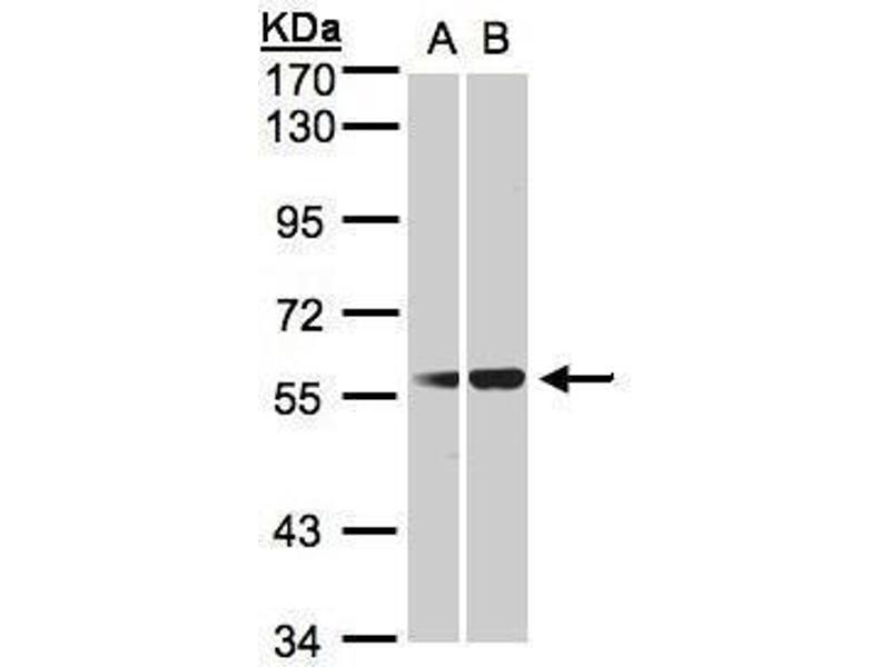 Western Blotting (WB) image for anti-Serpin Peptidase Inhibitor, Clade G (C1 Inhibitor), Member 1 (SERPING1) (Center) antibody (ABIN2856082)