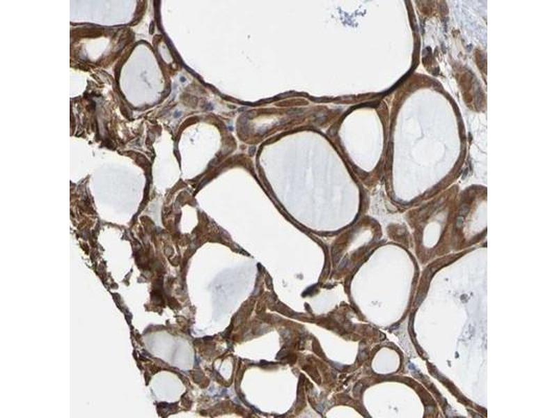 Immunohistochemistry (Paraffin-embedded Sections) (IHC (p)) image for anti-ELMO/CED-12 Domain Containing 3 (ELMOD3) 抗体 (ABIN4349531)