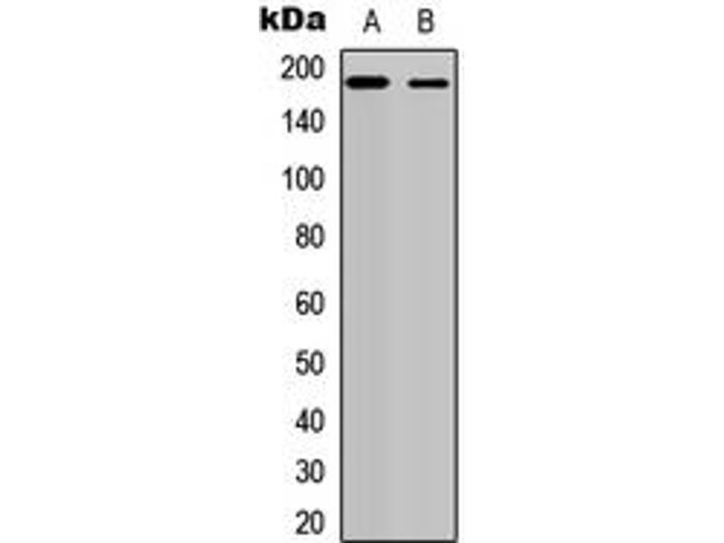 Western Blotting (WB) image for anti-V-Erb-A erythroblastic Leukemia Viral Oncogene Homolog 4 (Avian) (ERBB4) (C-Term) antibody (ABIN2704882)
