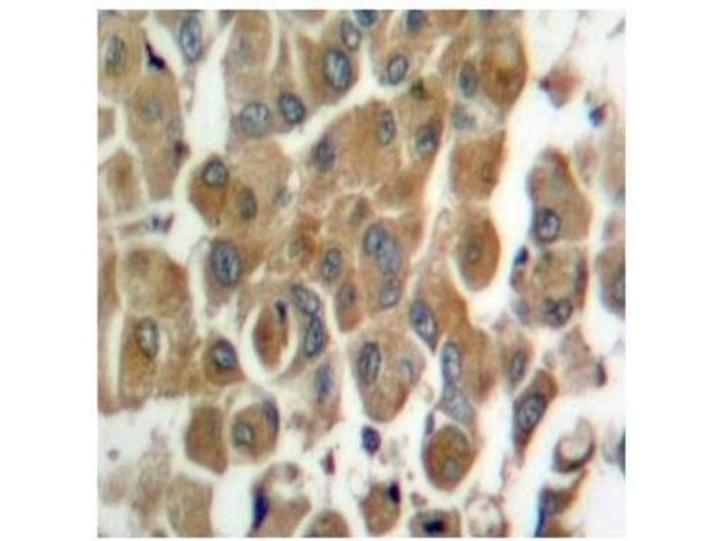 Immunohistochemistry (Paraffin-embedded Sections) (IHC (p)) image for anti-PKC delta antibody (Protein Kinase C, delta) (pThr507) (ABIN4345832)