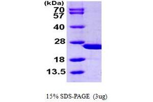 Image no. 1 for Calcyphosine (CAPS) (AA 1-189) protein (His tag) (ABIN667359)