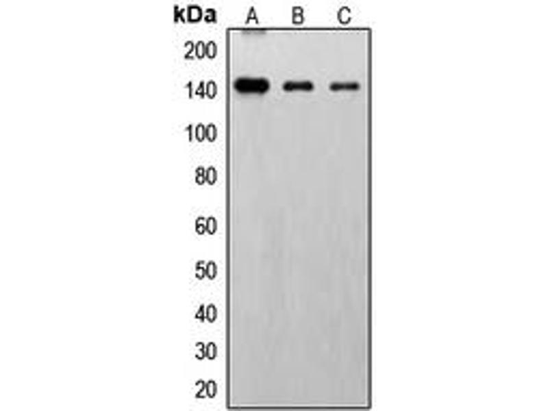 Western Blotting (WB) image for anti-Fibroblast Growth Factor Receptor 1 (FGFR1) (C-Term), (pTyr766) antibody (ABIN2704788)