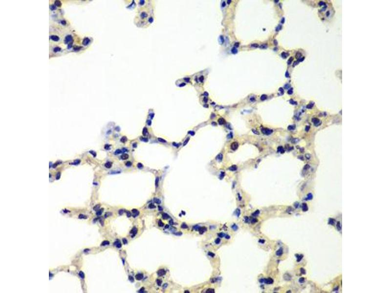 Immunohistochemistry (Paraffin-embedded Sections) (IHC (p)) image for anti-Polynucleotide Kinase 3'-Phosphatase (PNKP) antibody (ABIN2969801)