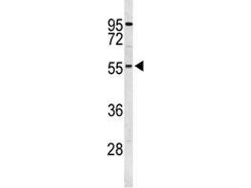 Western Blotting (WB) image for anti-Ribosomal Protein S6 Kinase, 70kDa, Polypeptide 2 (RPS6KB2) antibody (ABIN3032485)