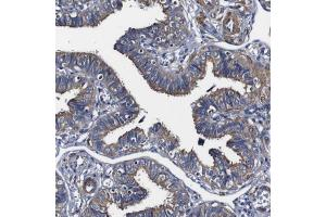 Immunohistochemistry (Paraffin-embedded Sections) (IHC (p)) image for anti-Programmed Cell Death 6 Interacting Protein (PDCD6IP) antibody (ABIN4279376)