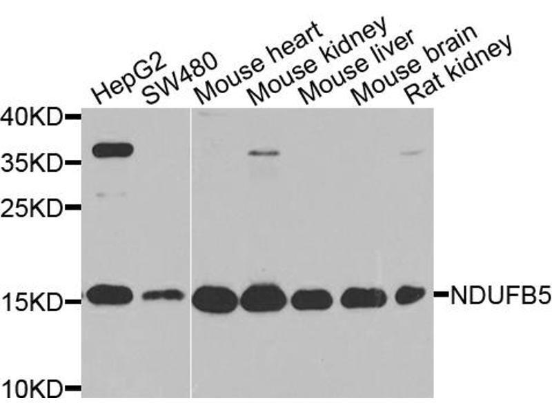 Image no. 1 for anti-NADH Dehydrogenase (Ubiquinone) 1 beta Subcomplex, 5, 16kDa (NDUFB5) antibody (ABIN6568461)