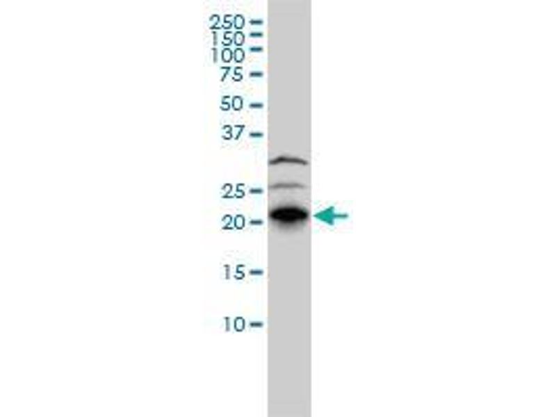 Immunohistochemistry (IHC) image for anti-Ras Homolog Gene Family, Member J (RHOJ) (AA 1-215) antibody (ABIN394530)