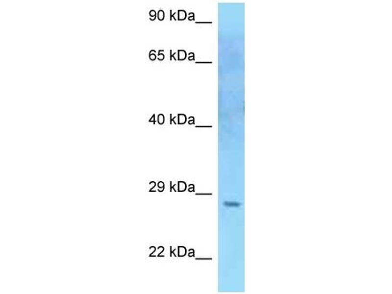 Western Blotting (WB) image for anti-Suppressor of Cytokine Signaling 2 (SOCS2) (C-Term) antibody (ABIN2789498)